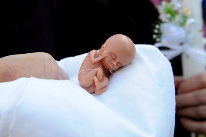 Ilustračný obrázok k článku Potraty v okrese Spišská Nová Ves: Toľkoto žien prišlo počas roka o svoje dieťa!