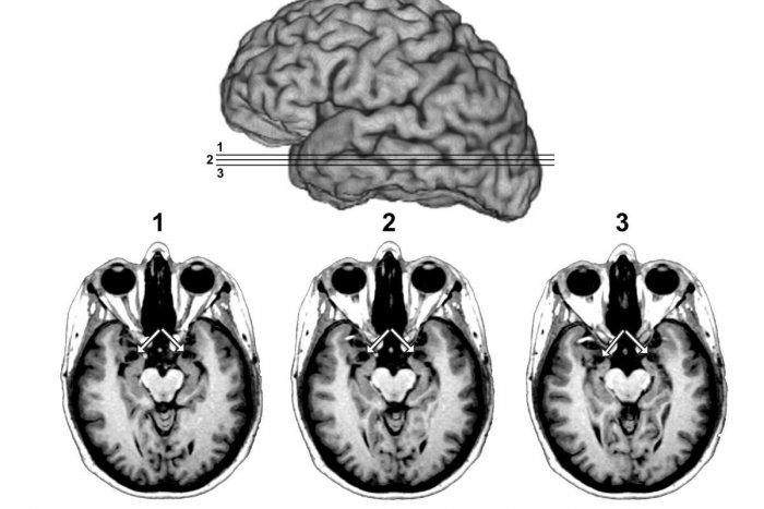 Ilustračný obrázok k článku Pri cievnej mozgovej príhode ide o čas: Ročne postihuje tisíce Slovákov