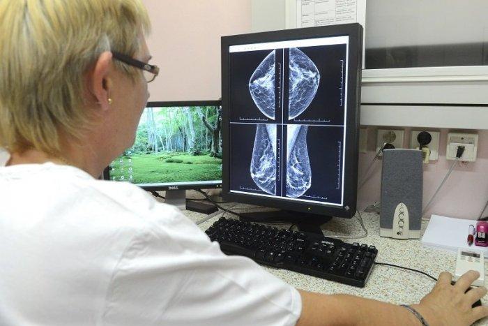 Ilustračný obrázok k článku V breznianskej nemocnici sa pokazil mamograf. Prístroj je neopraviteľný, vyšetrenia stopli