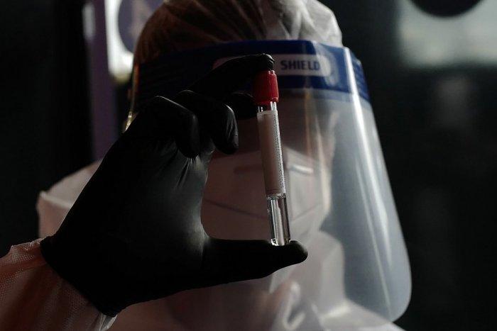 Ilustračný obrázok k článku Máme desiatky ďalších obetí koronavírusu! Dobrou správou je vysoké číslo vyliečených