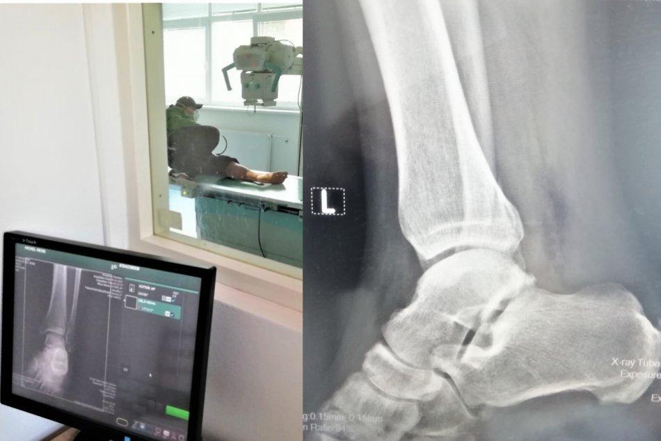 Ilustračný obrázok k článku Na röntgenológii v Moravciach sa nenudili: Vlani zrealizovali 10-tisíc vyšetrení