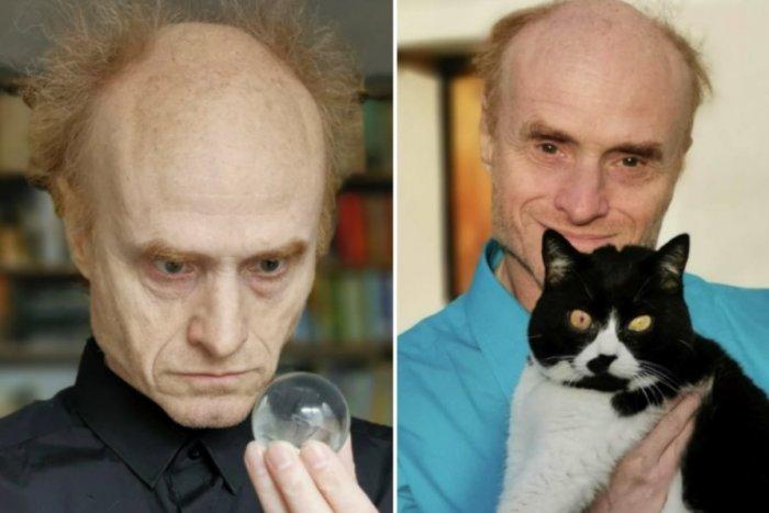 Ilustračný obrázok k článku Uznávaný vedec: Od mačiek sa NIKDY nenechajte hrýzť a driapať, môže to stáť život!
