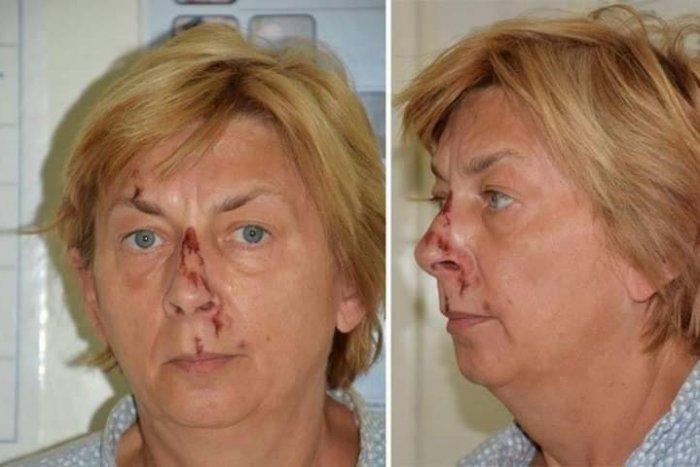 Ilustračný obrázok k článku Nepoznáte ju? V Chorvátsku našli ženu, ktorá nevie, ako sa volá a odkiaľ prišla, FOTO